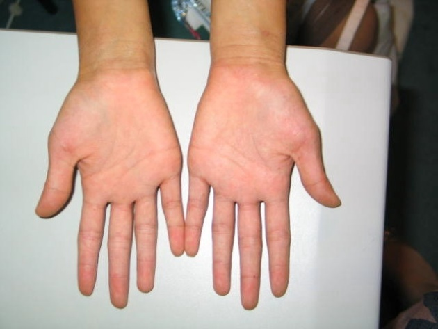Hands Atopic dermatitis After ( Nov 08)