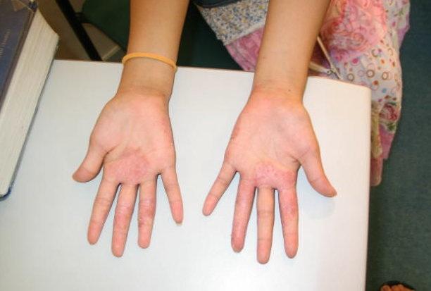 Eczema/Atopic Dermatitis